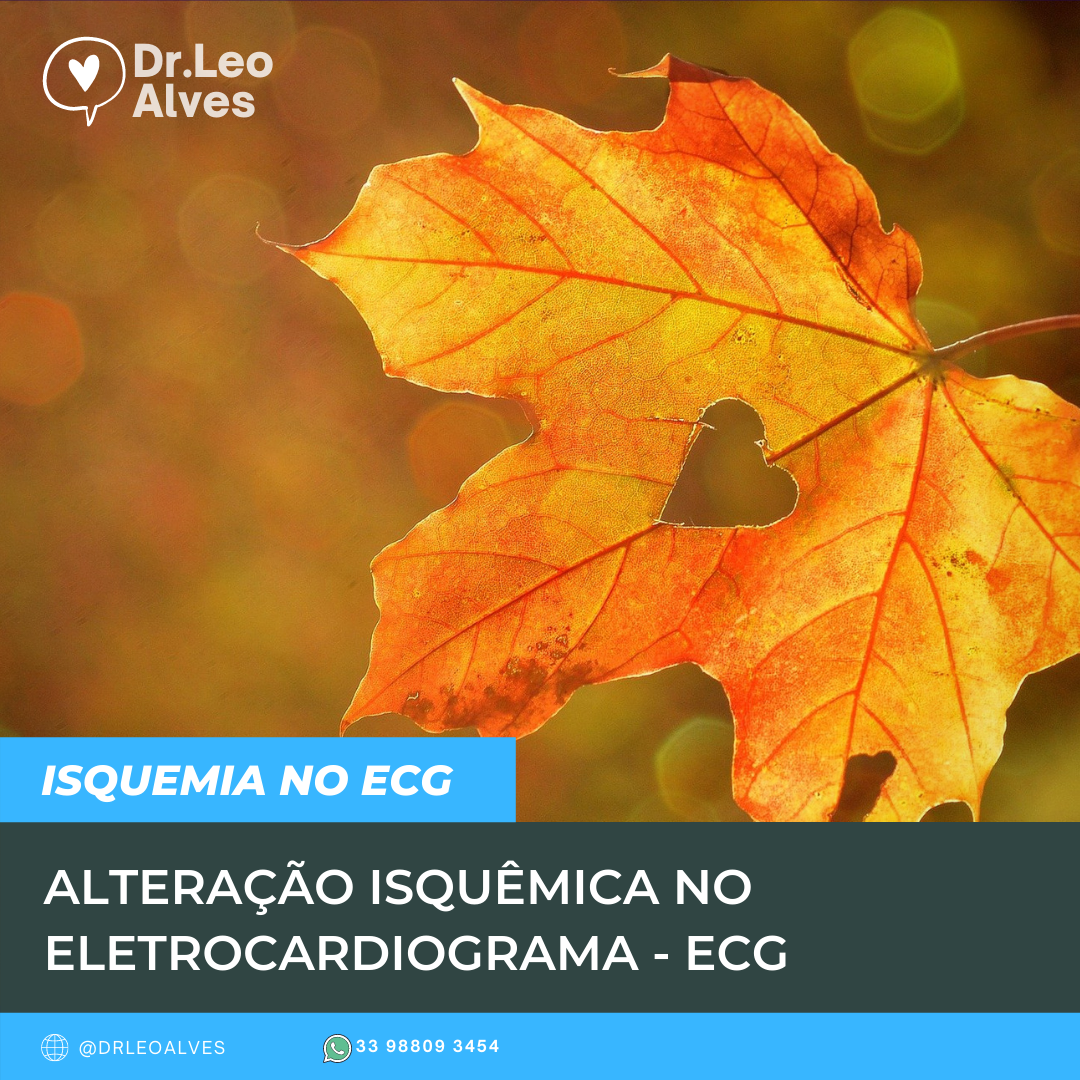 Alteração isquêmica no Eletrocardiograma